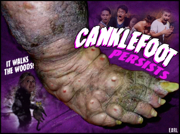 canklefoot